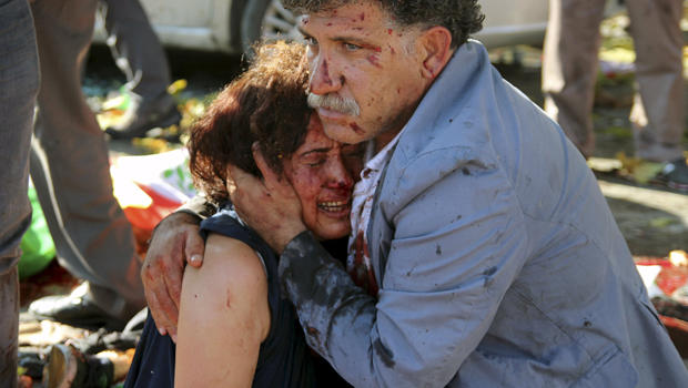 An injured man hugs an injured woman after an explosion during a peace march in Ankara, Turkey, October 10, 2015. REUTERS/Tumay Berkin TPX IMAGES OF THE DAY